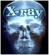 Manfaat & Bahaya Sinar X Bagi Manusia
